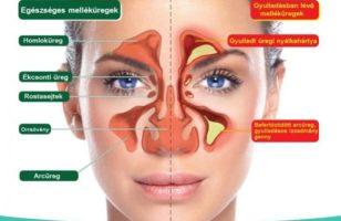 Arcüreggyulladás (Sinusitis)